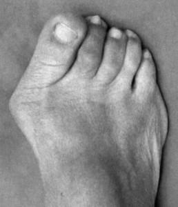 Wamser-Krasznai-Füße-Bild 12
