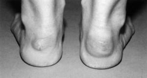 Wamser-Krasznai-Füße-Bild 4